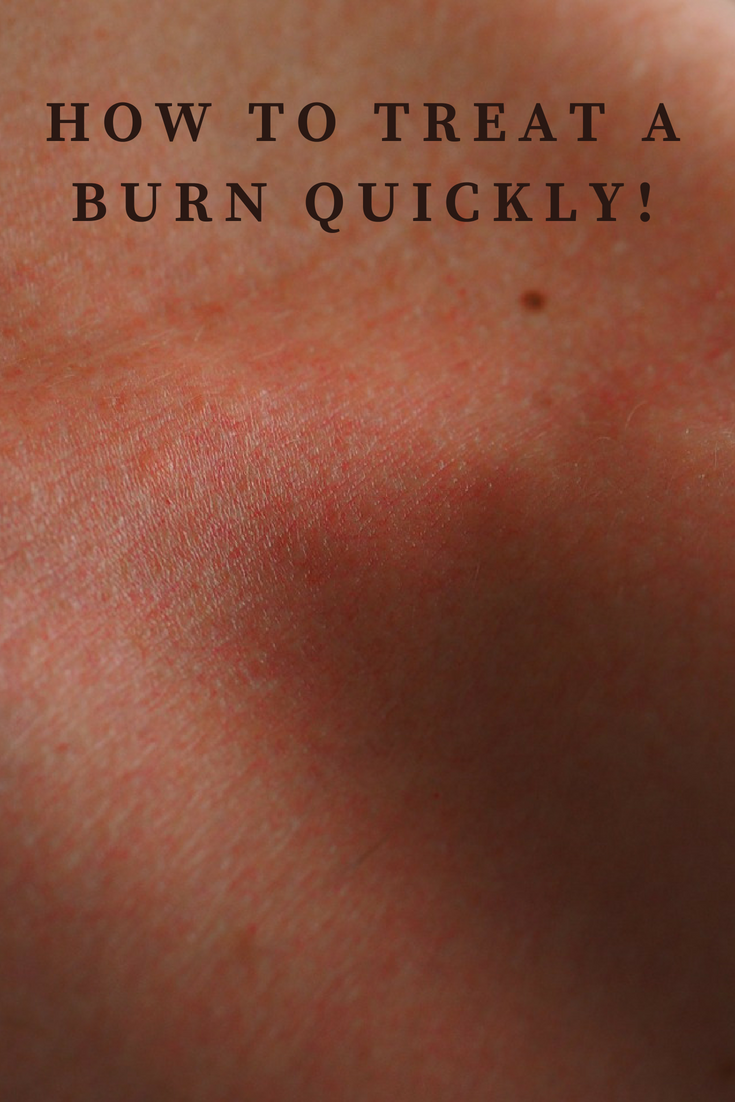 Burn Jel Plus Review
