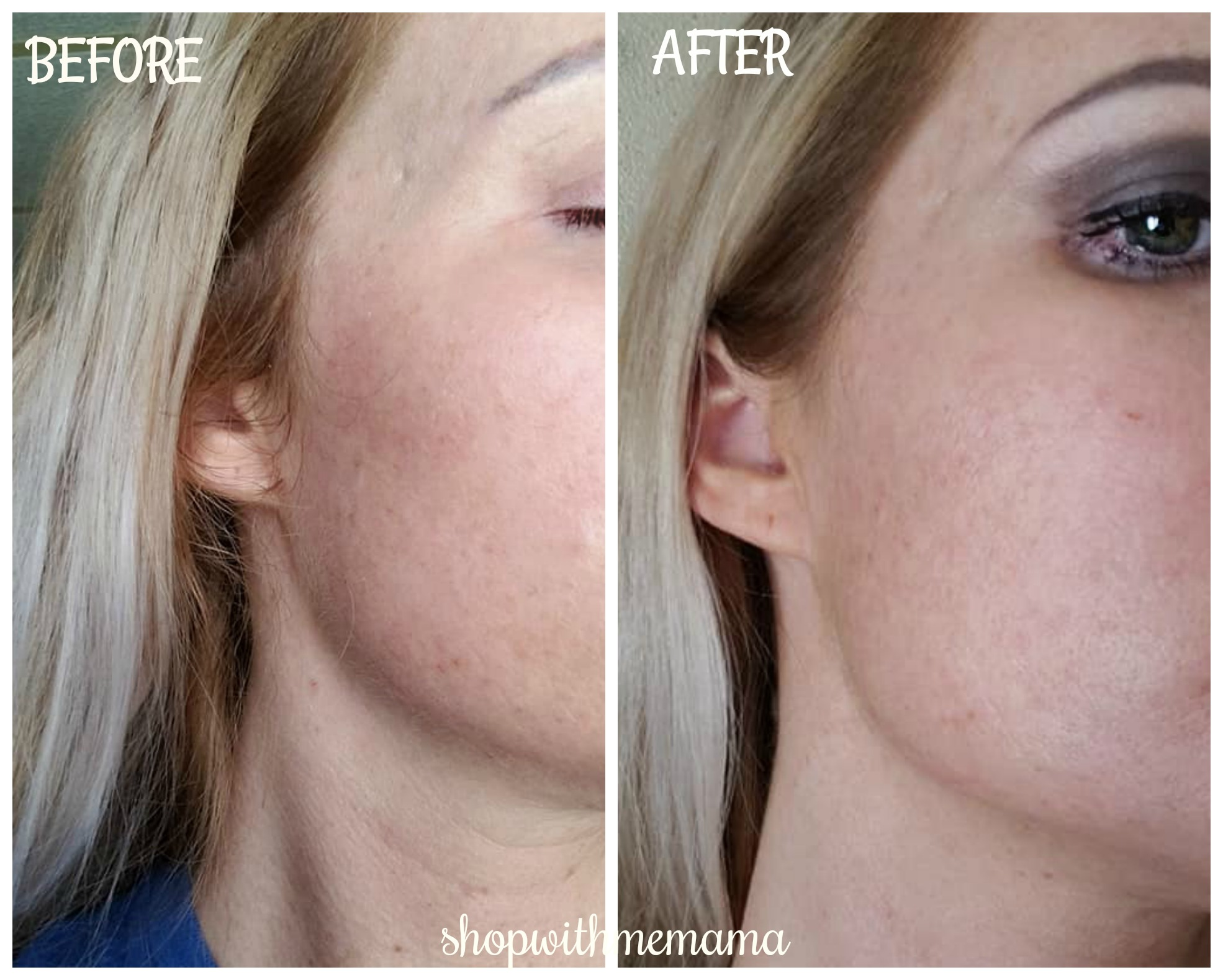 Before and after pictures of skin