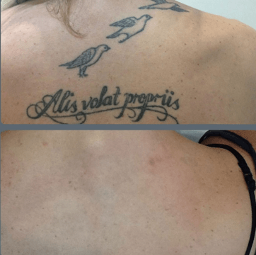 Is Laser Tattoo Removal Worth The Cost