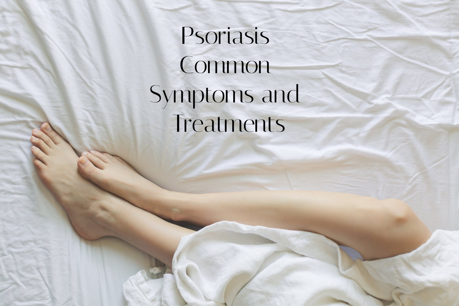 Psoriasis Common Symptoms and Treatments